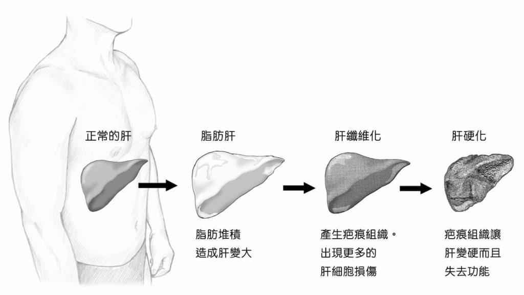 脂肪肝-肝硬化過程