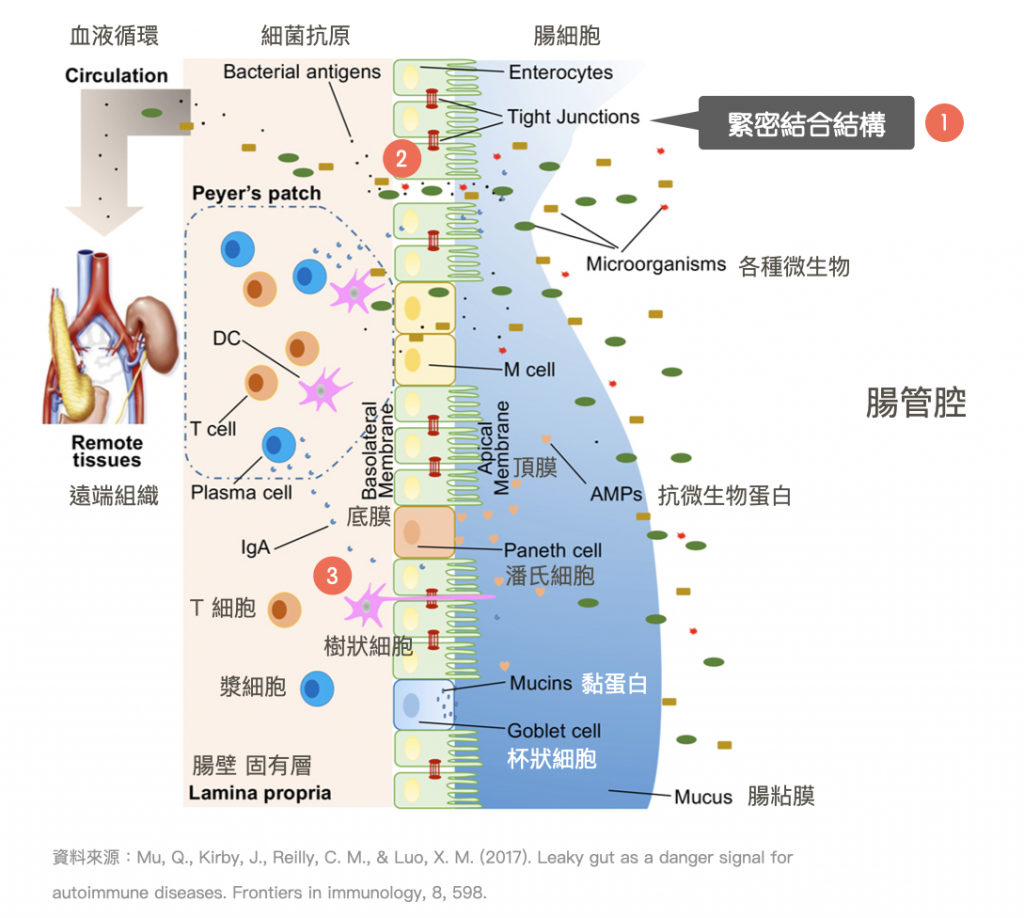 腸漏症-腸道健康-腸道環境